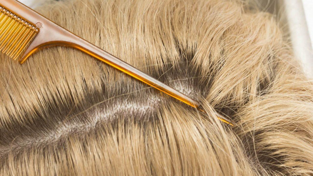 白髪 頭皮保護